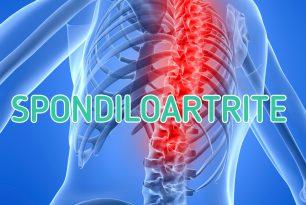 Insorgenza di Spondiloartrite nei pazienti affetti da Morbo di Crohn:  esiste una correlazione con la Disbiosi Intestinale?