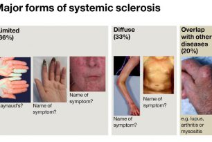 Microbioma Intestinale e Sclerodermia